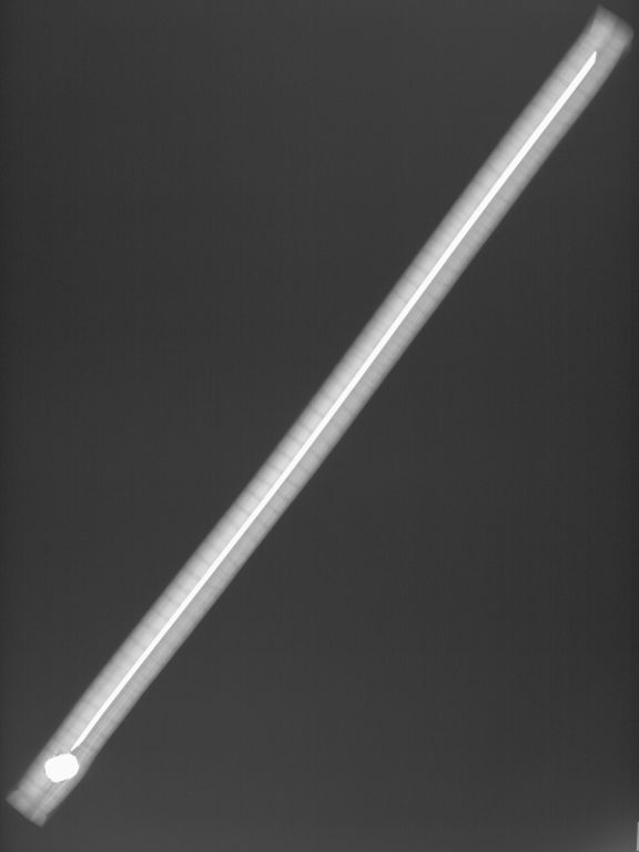 X-ray image showing a long, thin object on the diagonal, with a small oval-shaped object at one end and rod running through the centre